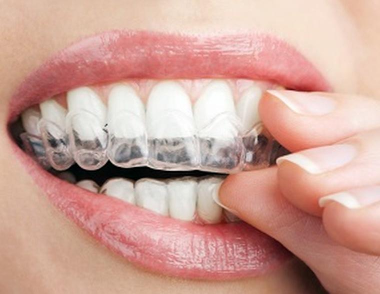 Что такое элайнеры для выравнивания зубов?