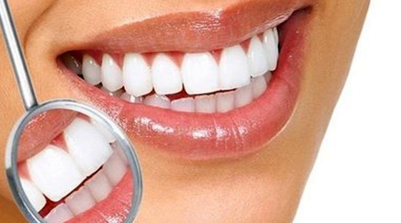 Про отбеливание зубов в Химках