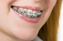 Как исправить зубы брекетами?