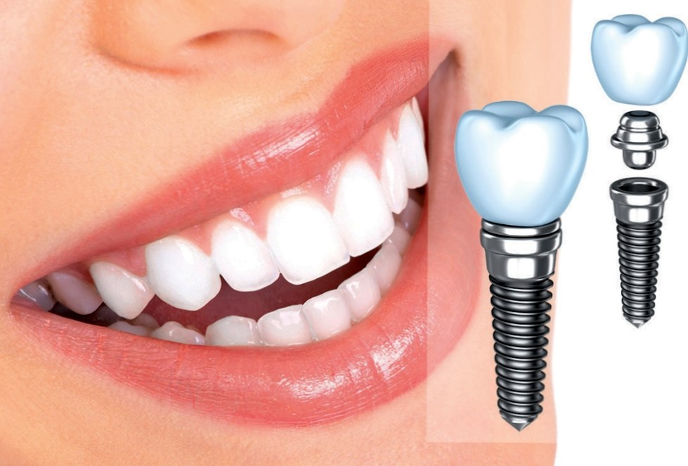 Что такое имплантация зуба?