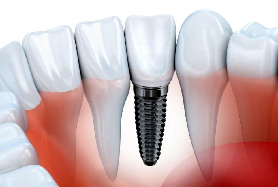 Как протезируются зубы?