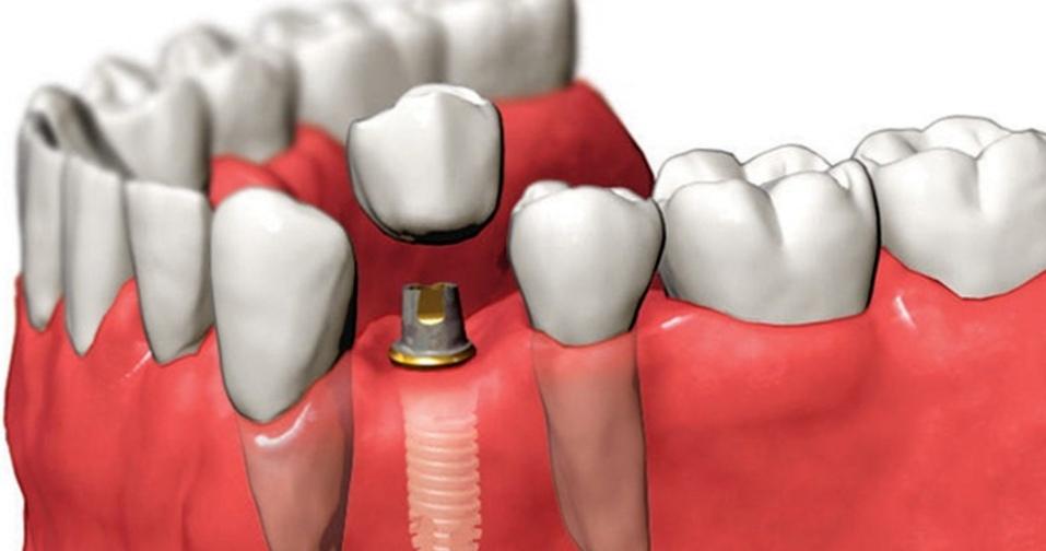 Возможна ли имплантация при полном отсутствии зубов?