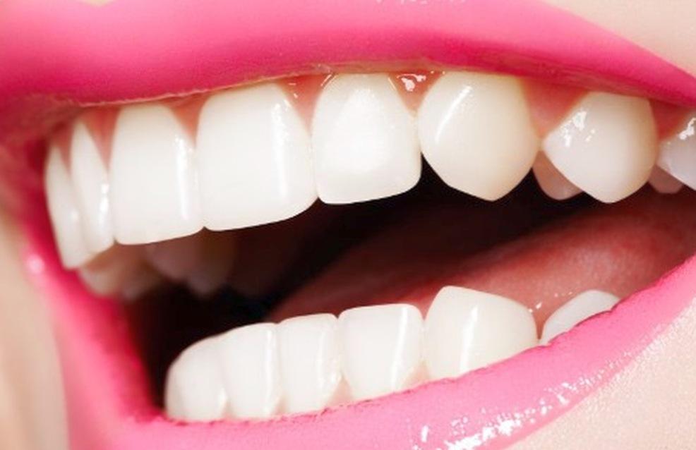 Про отбеливание зубов Зум