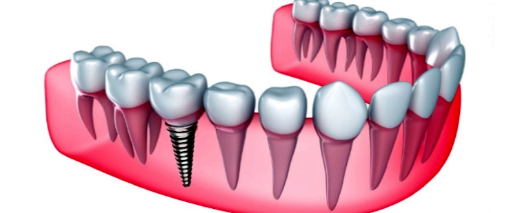 Как можно восстановить утраченный зубной ряд? Какие импланты лучше использовать?
